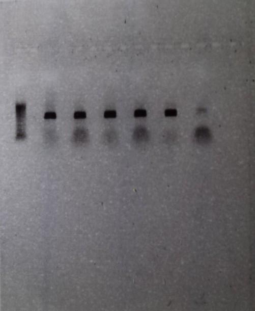 PCR 1