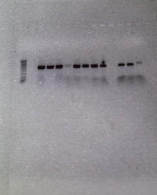 PCR 2